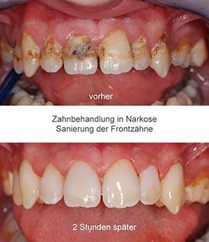Zahnbehandlung in Narkose Vorher-Nachher-Ergebnis